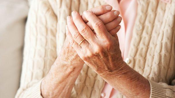 triệu chứng viêm đa khớp dạng thấp