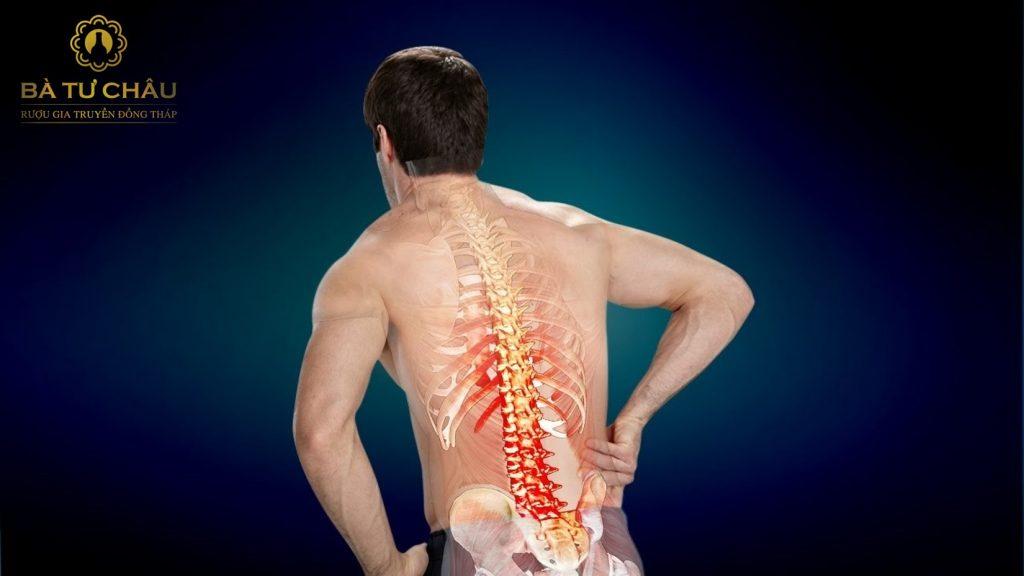 Bệnh xương khớp gây đau lưng dưới
